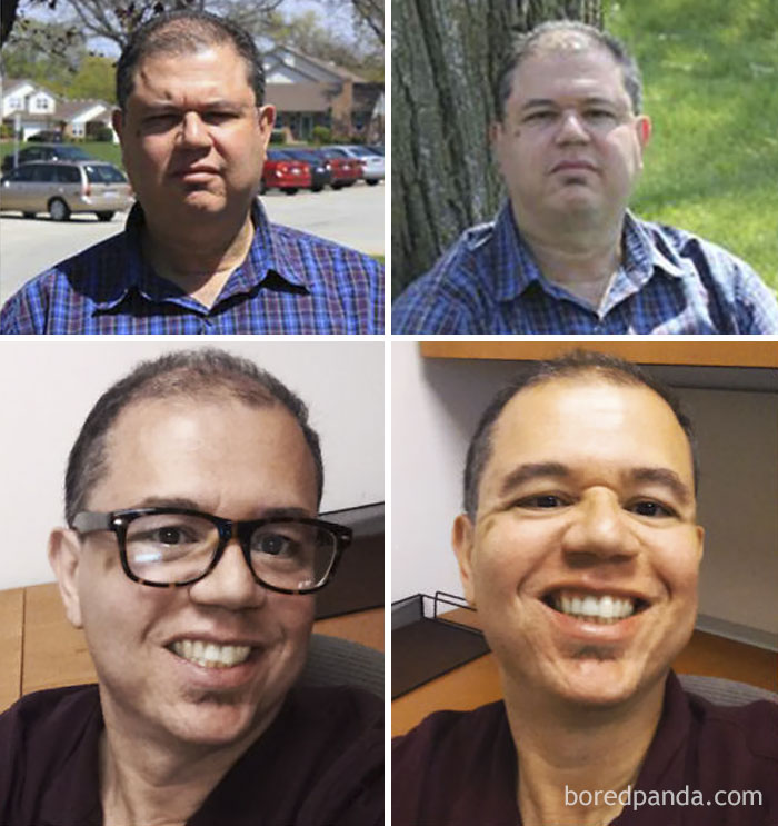 Lost 70 Lbs In Nine Months. I Can Smile Again