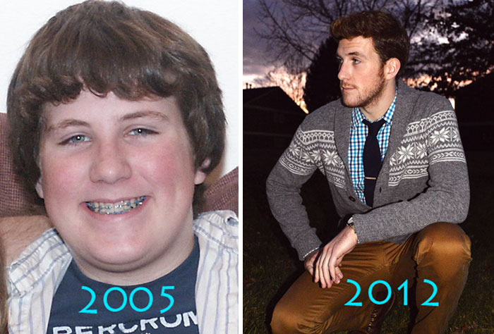 before-after-ugly-duckling-beauty-transformation