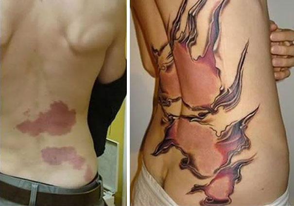 Huge Birthmark Cover Up