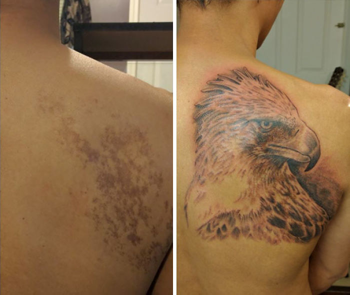 Birthmark Cover Up With A Philippine Eagle