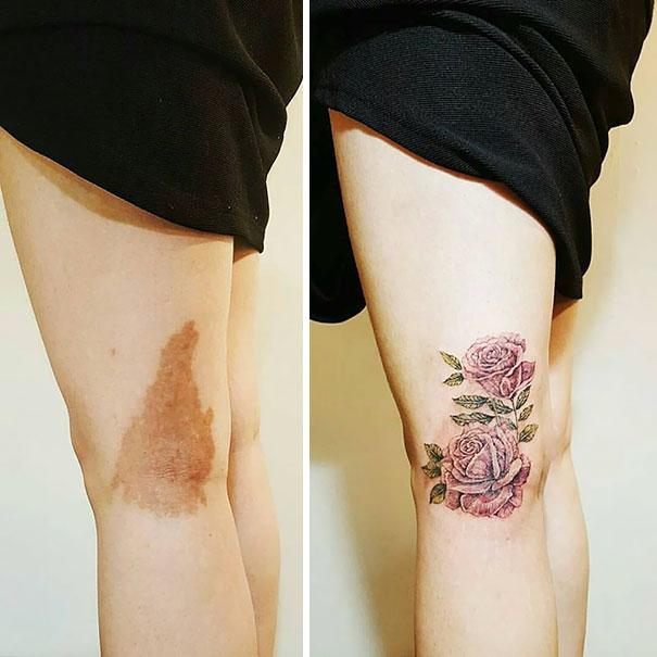 Birthmark Coverup Tattoo