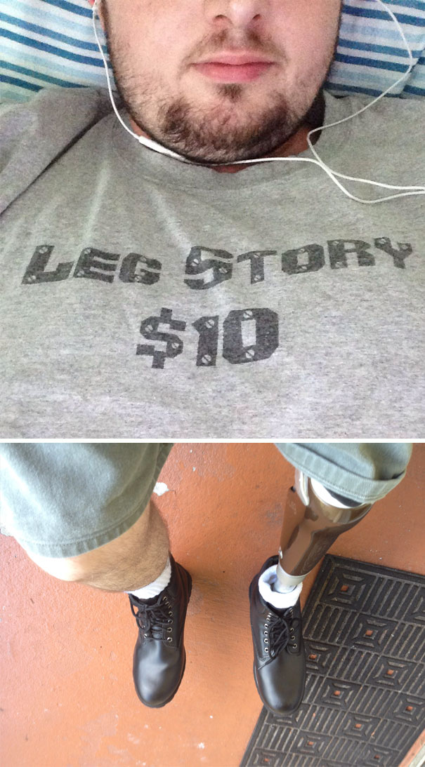 Want To Hear The Leg Story?