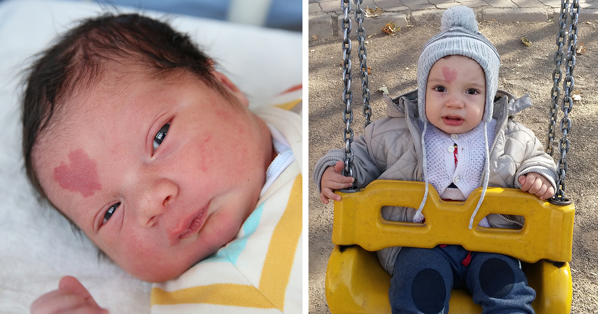 People Are In Love With This Baby Born With A Heart-Shaped ...