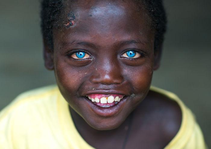 I Met Ethiopian Boy With The Plastic Eyes