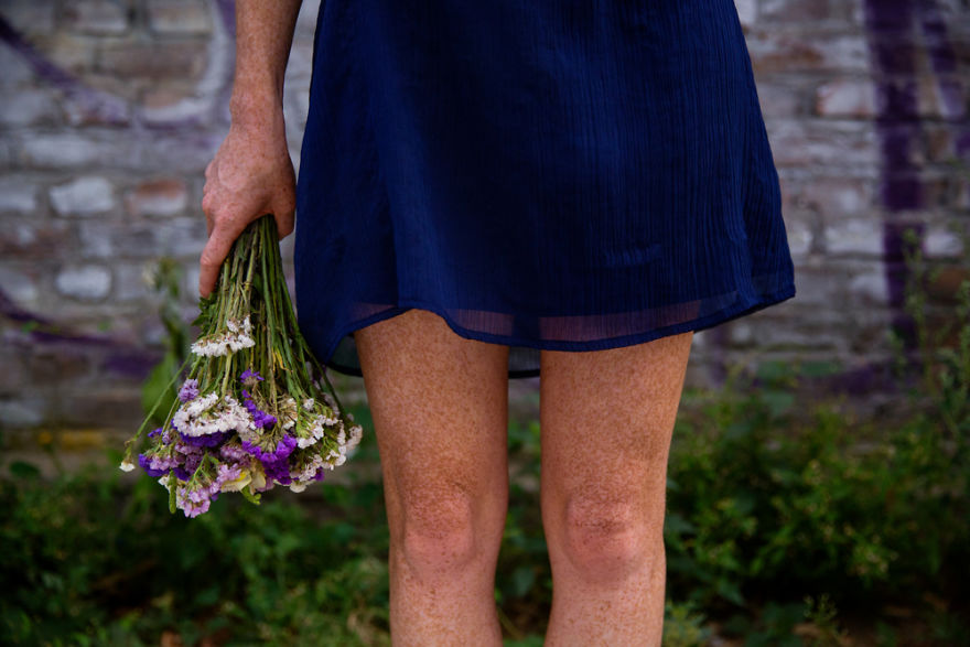 The Freckled Legs Of A Girl From Budapest