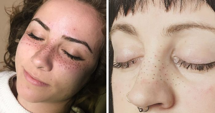 Tattooing Freckles On Your Face Is The New Beauty Craze, And They ...