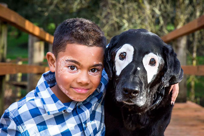 Boy With A Rare Skin Disorder Hates His Looks, Until He Meets His Dog Twin