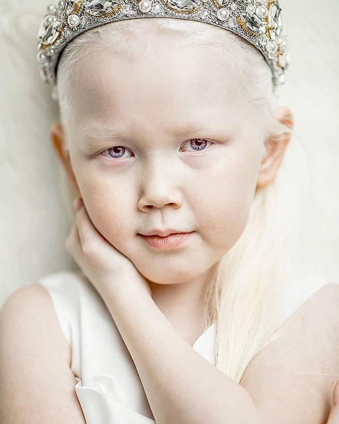 albino-girl-snow-white-nariyana-siberia-10