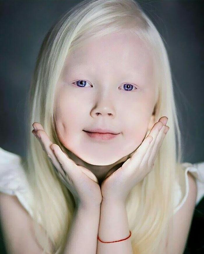 albino-girl-snow-white-nariyana-siberia-11