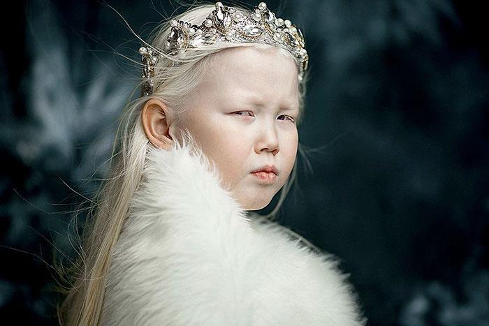 albino-girl-snow-white-nariyana-siberia-14