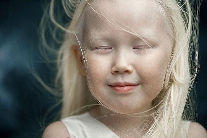 albino-girl-snow-white-nariyana-siberia-16