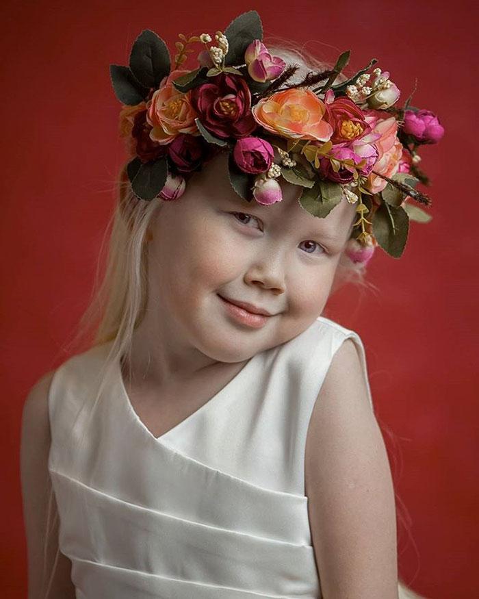 albino-girl-snow-white-nariyana-siberia-17