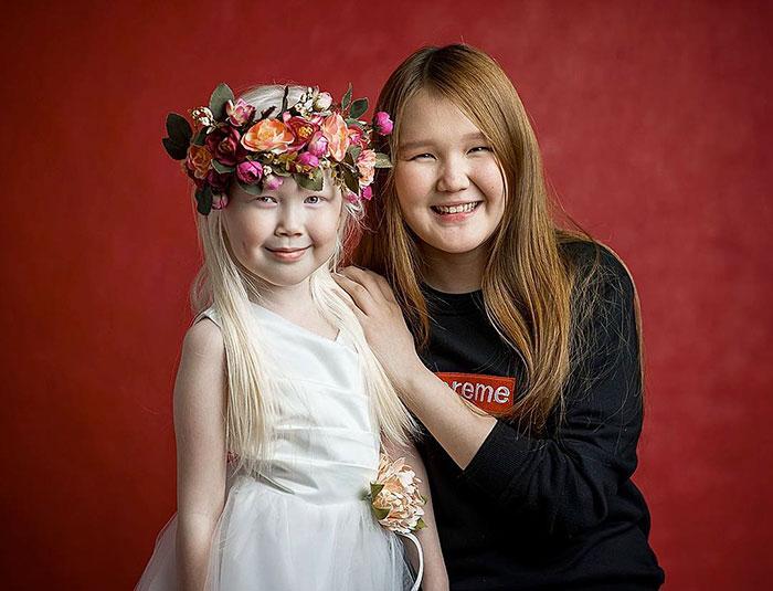albino-girl-snow-white-nariyana-siberia-19