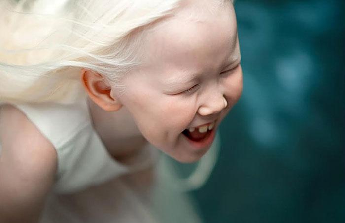 albino-girl-snow-white-nariyana-siberia-2