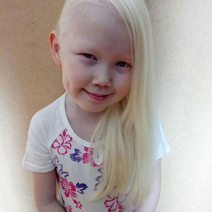 albino-girl-snow-white-nariyana-siberia-23