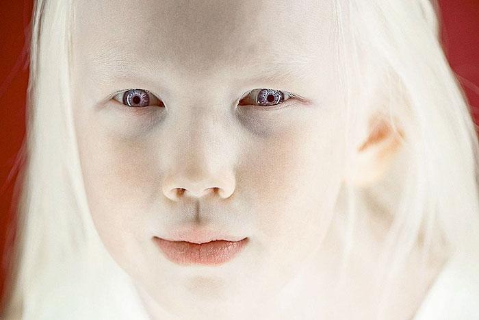 albino-girl-snow-white-nariyana-siberia-5
