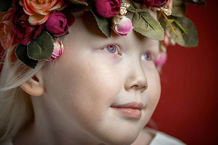 albino-girl-snow-white-nariyana-siberia-6