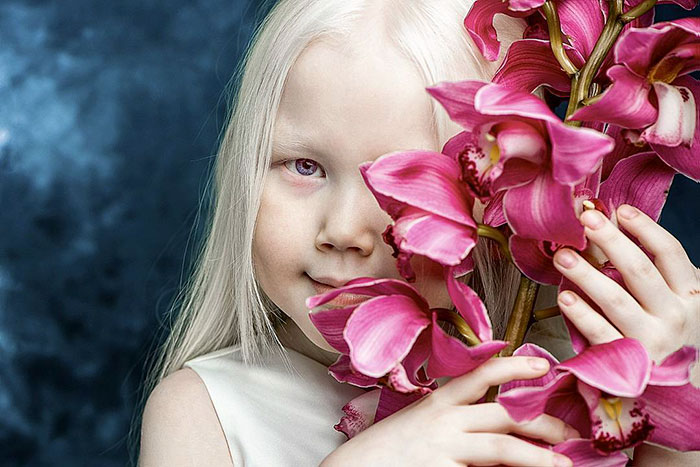 albino-girl-snow-white-nariyana-siberia-7