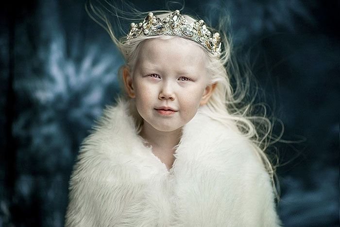 """8-Year-Old """"Siberian Snow White"""" Surprises Modeling Agencies With Unique Beauty, Gets Flooded With Offers"""