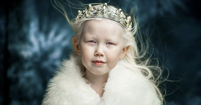 8 Year Old Siberian Snow White Surprises Modeling Agencies With