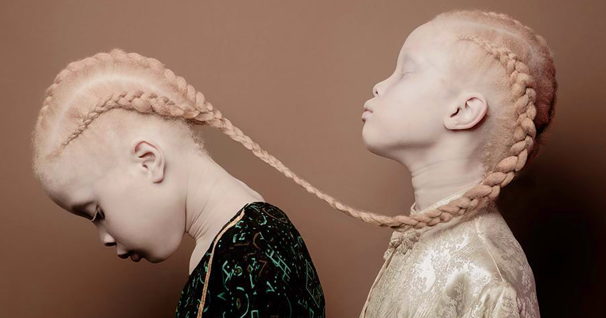 https://static.boredpanda.com/blog/wp-content/uploads/2017/04/albino-twins-models-fb.png