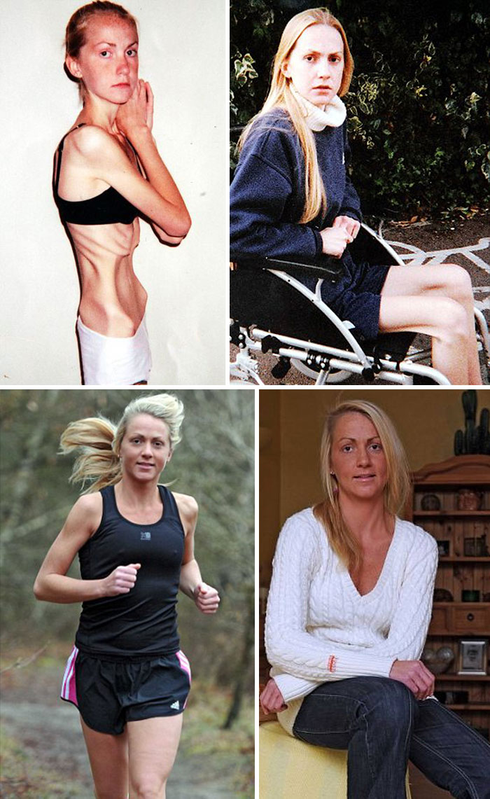 Inspirational Recovery Of Anorexic Nurse Who Was On The Brink Of Death