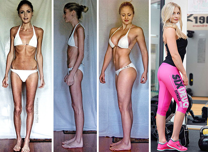 Linn Strömberg, 23, Survived On Just 400 Calories A Day And Was In Danger Of Suffering A Heart Attack Before Taking Up Weightlifting