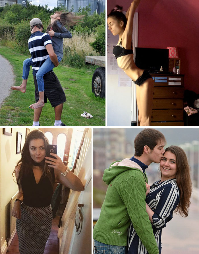Georgia Mcgrath Was So Frail That Her Ribs Snapped When She Jumped Into Her Boyfriend's Arms But She's Now Made An Incredible Recovery