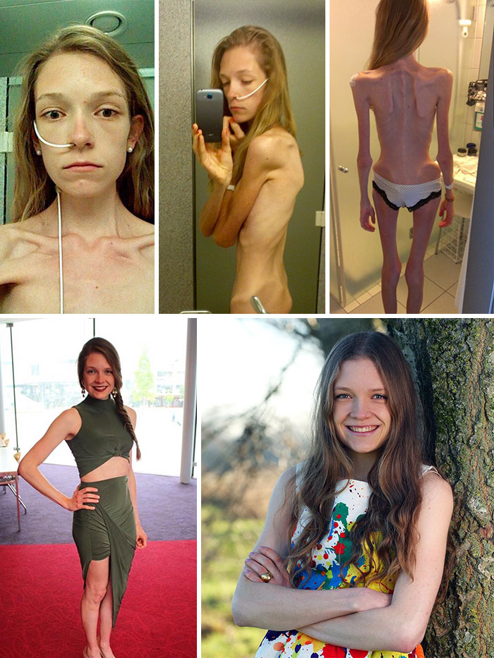 2 Hannah During The Grip Of Her Anorexia When BMI Dropped To 11 An Now