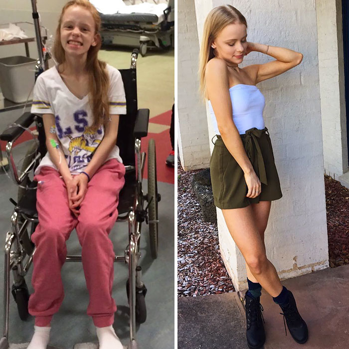 She Was At A Point Where She Had To Use A Wheelchair And Look At Her Now