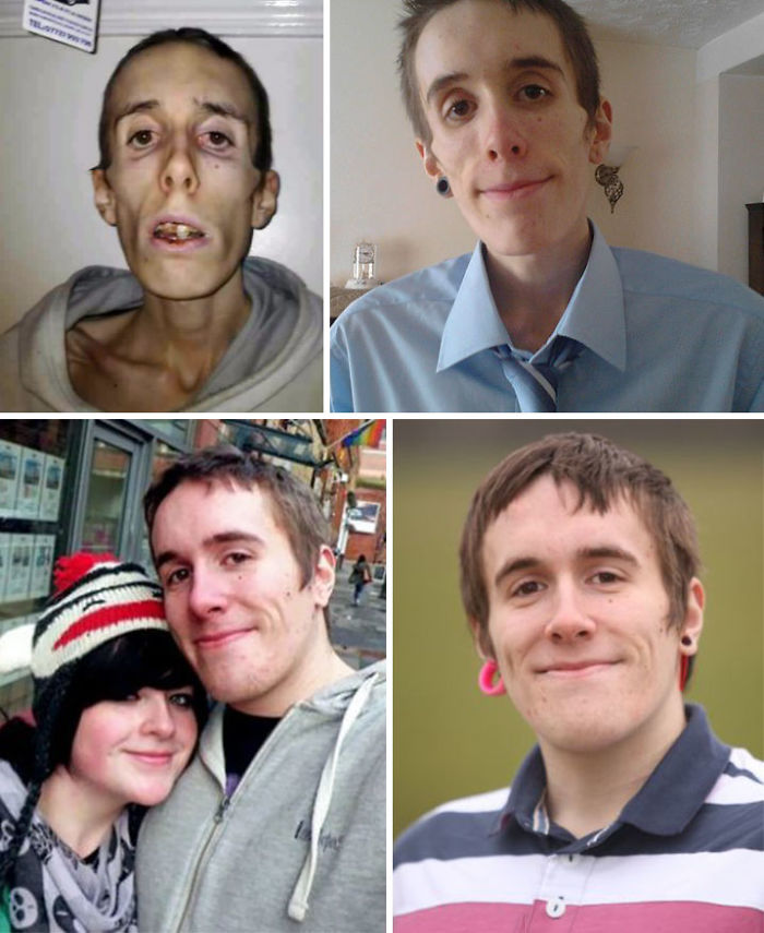 5 Matthew Booth Died For 20 Minutes When He Was Rushed To Hospital And It Saved His Life