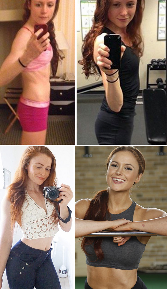 10+ Before & After Pics Of People Who Defeated Anorexia ... - photo #44