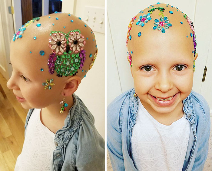 This 7 Year Old Girl Didn T Let Alopecia Stop Her From