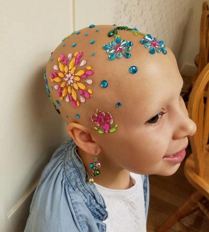 girl-alopecia-crazy-hair-day-gianessa-wride-13
