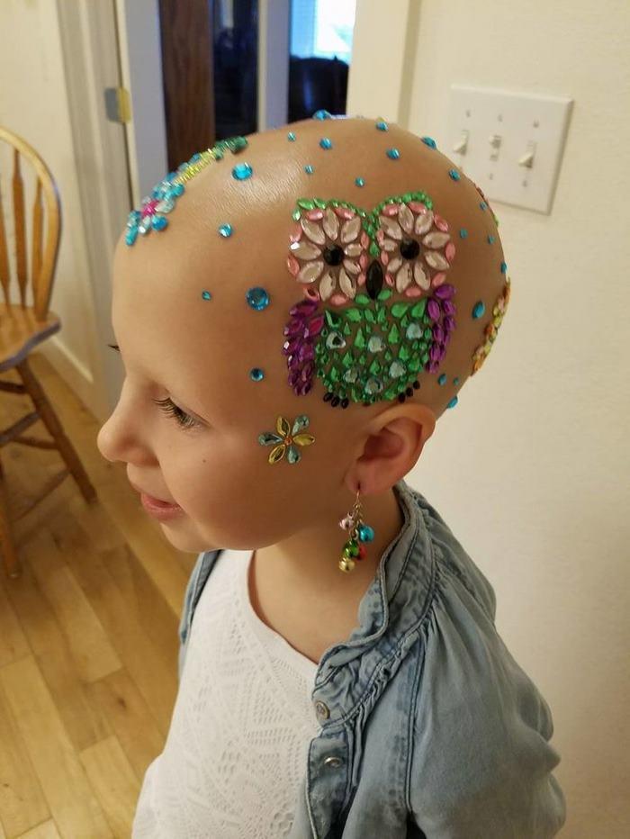 girl-alopecia-crazy-hair-day-gianessa-wride-2