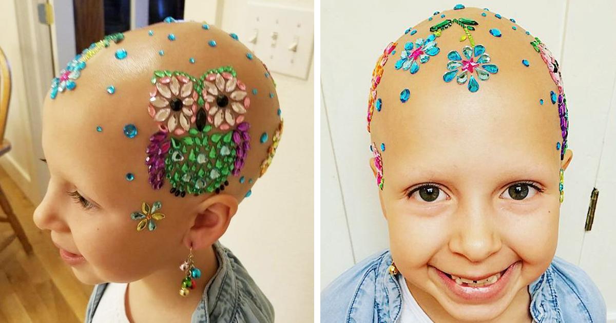 Esta Nina De 7 Anos No Permitio Que Su Alopecia Le Impidiera