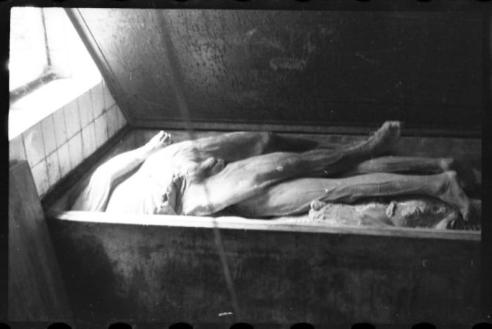1940-1944: Corpses And Body Parts In The Morgue