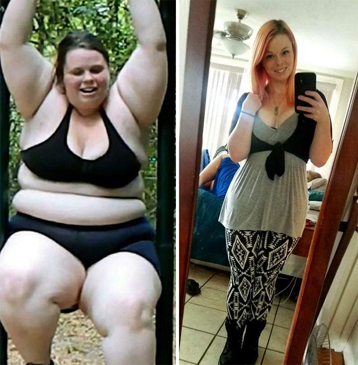Tras perder 87 kilos