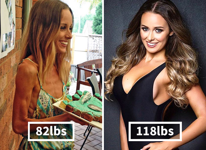 10+ Before & After Pics Of People Who Defeated Anorexia