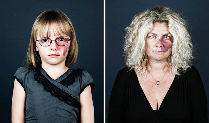 10+ Portraits Of People With Birthmarks That Might Change The Way You See Them