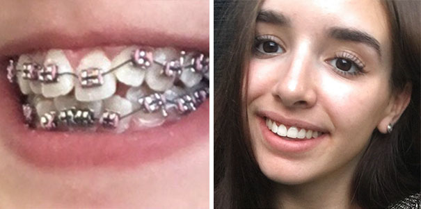 13 Months Of Braces, A Mechanical Bite Expansion And Two Veneers Later
