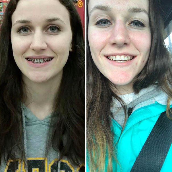 I Just Got My Braces Off! It's Been Two Years And Two Fake Teeth And Totally Worth It