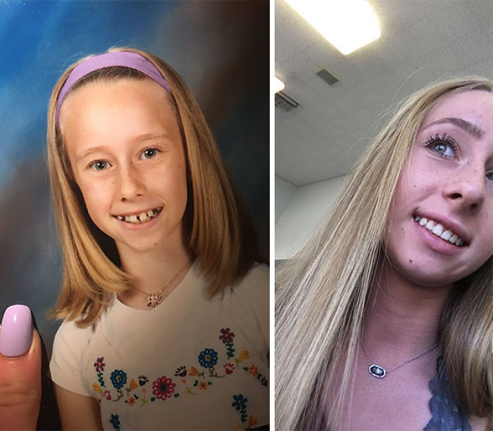 Shoutout To Braces For This Transformation