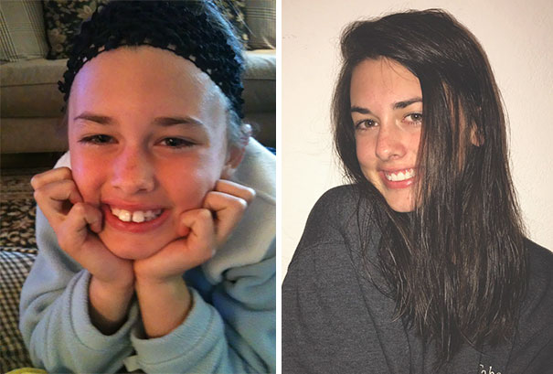 Since I Got My Braces Off Today, Here's A Little Transformation