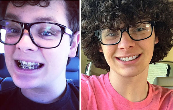 Praise Jesus For This Transformation! From The First Day Of Braces To When I Finally Got Them Off