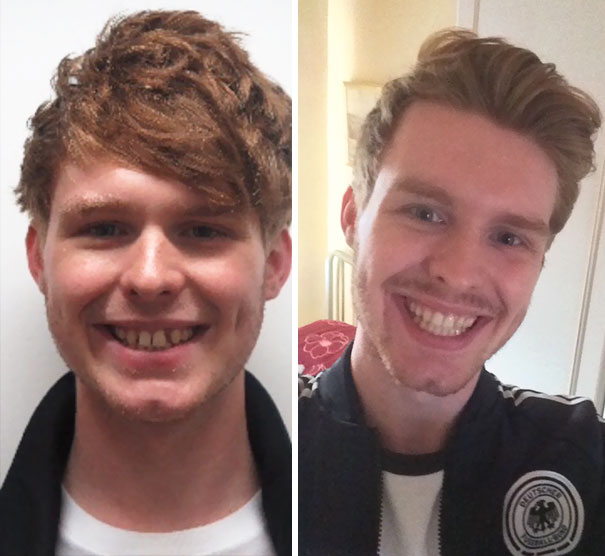 Finally Had My Braces Off! What A Massive Change 16 Months Has Made