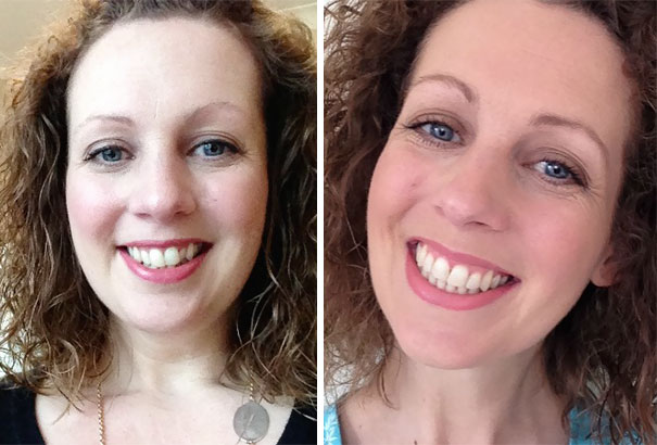 Smile Transformation - The Braces Are Off!