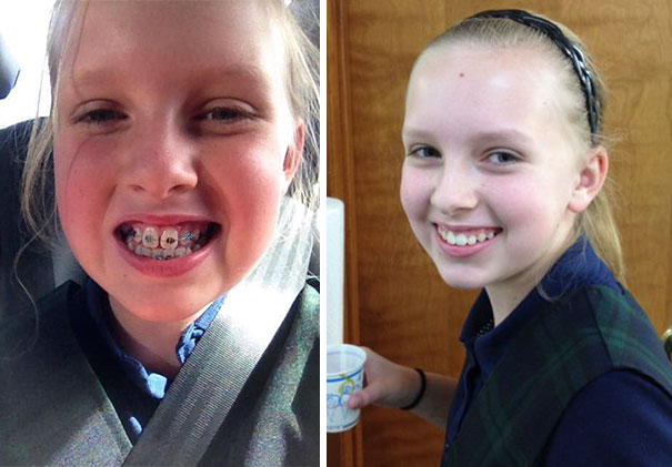 Lily Got Her Braces Off Today! What A Difference 1 Year Makes