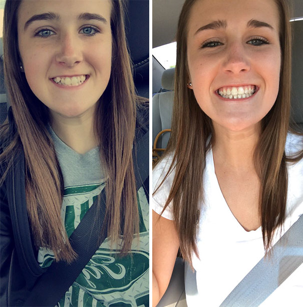 Thank God For Tweezers, Makeup And Braces