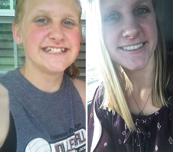 Just Want To Thank The Man Who Invented Braces